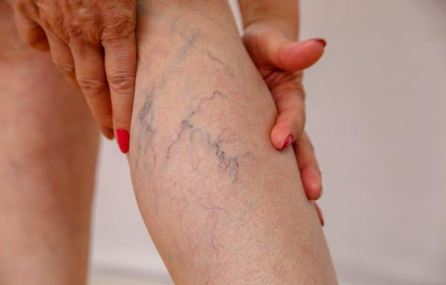 Quais são os sintomas de trombose nas pernas?