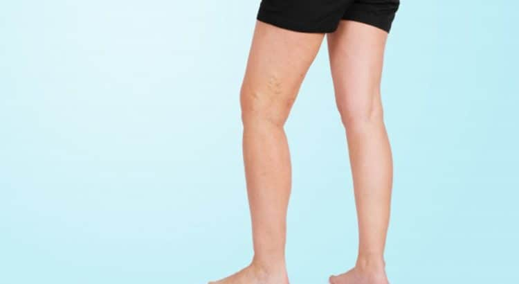 má circulação nas pernas | dores nas pernas | inchaço nas pernas | varizes nas pernas