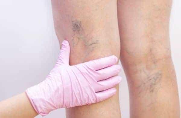 Você sabe o que causa varizes?
